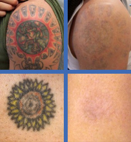 Laser tattoo removal vancouver bc for New tattoo removal technology